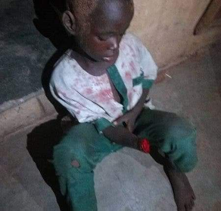 Unknown assailants chop off 7 years old hand in Kwara